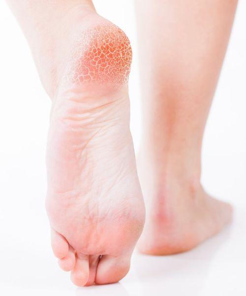 vaporub on your feet