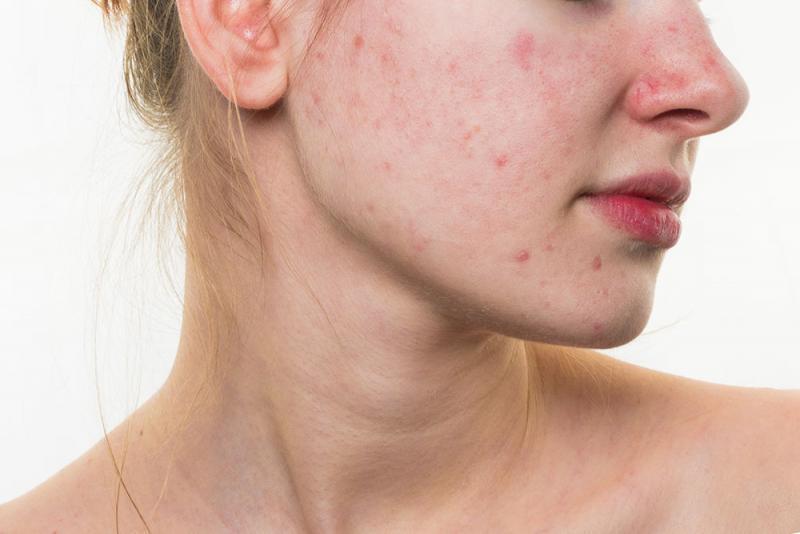 benefits of vicks vapor rub