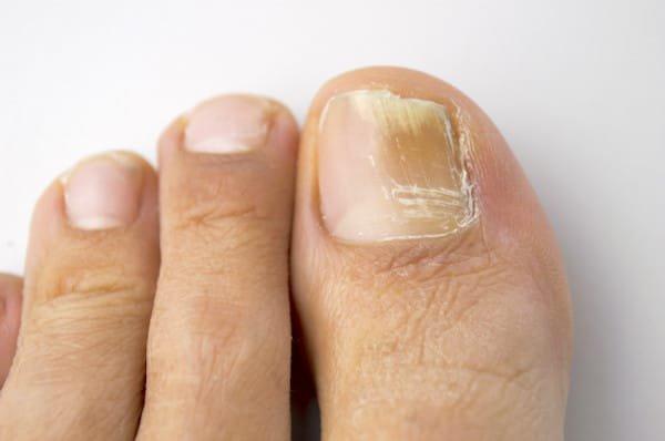 vicks vapor rub on feet