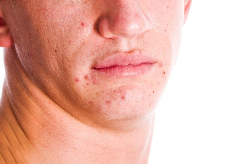 Four major types of scars you should know about to treat them better