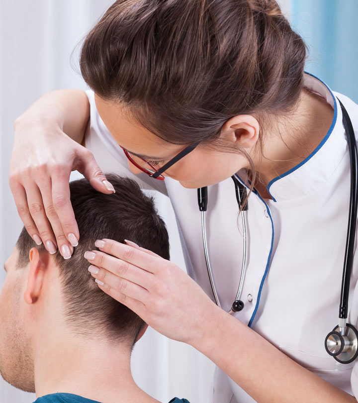 The history of the FUE hair transplant