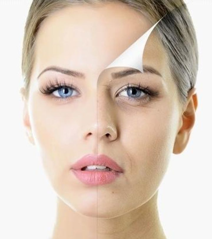 Who Are Ideal Candidates for Facelift Surgery?