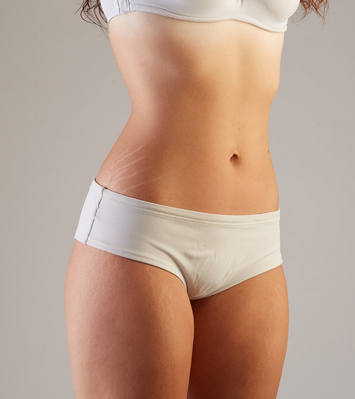 Can You Hide Tummy Tuck Scars?