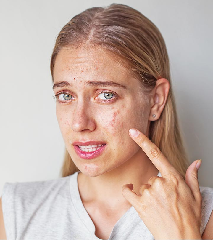 Oily Skin: Acne Breakout and The Use of Natural and Medical Procedures to Reduce Scarring