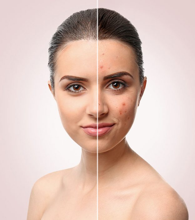 Acne Treatment Skincare Products to Use for Much Healthier Skin