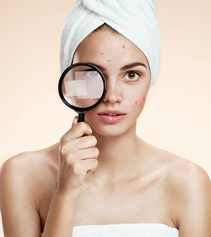 10 Ways for Effective Skin Spots Treatment