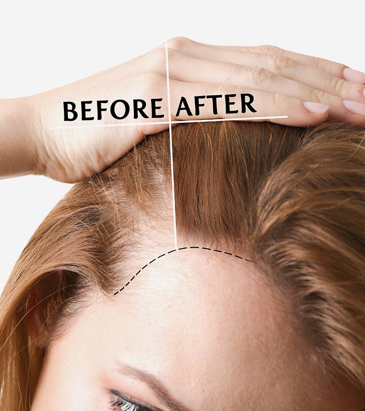 Taking Care of Your Hair Before Your Irvine Hair Transplant Procedure